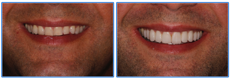 Same Day CEREC smile makeover Dental Spa